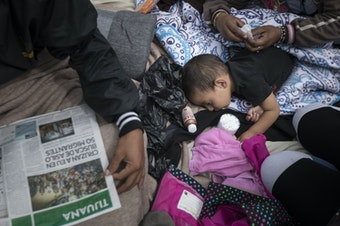 A two-year-old child from Honduras gets treatment for an ear infection after sleeping in the open in front of the El Chaparral port of entry, in Tijuana, Mexico, Monday, April 30, 2018.
