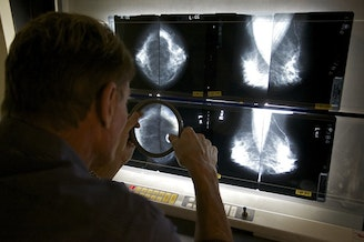 <p>Breast cancer is the most common cancer found among American women but Latinas are more likely to be diagnosed at later stages.</p>