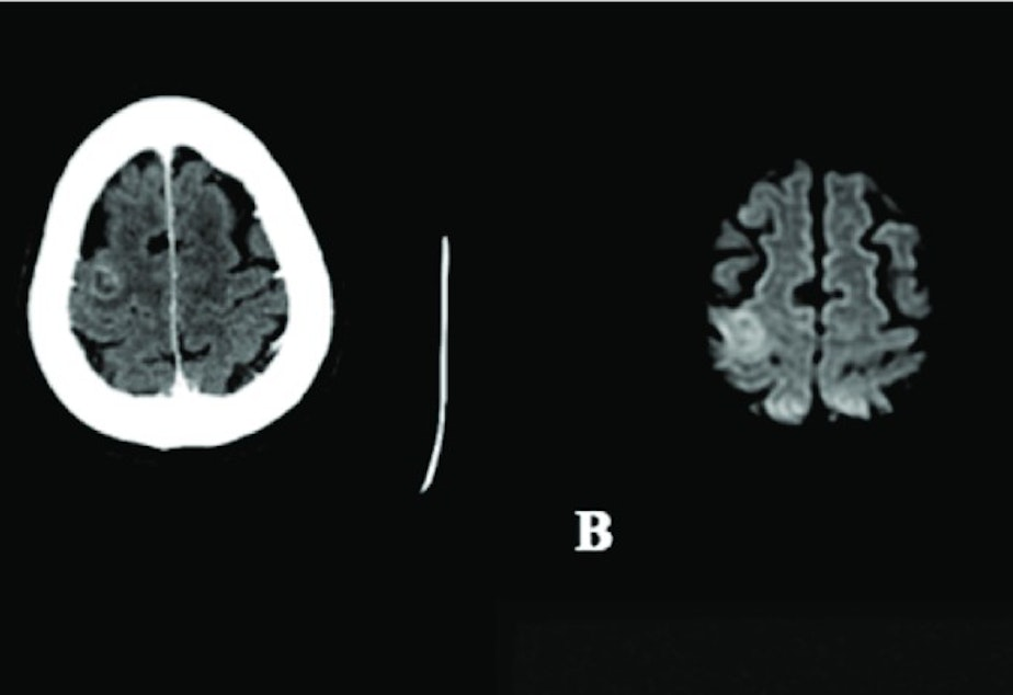 Brain scans show swelling and excessive hemorrhaging in the patient's brain, caused by Balamuthia mandrillaris brain infection.