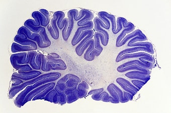 The cerebellum, a brain structure humans share with fish and lizards, appears to control the quality of many functions in the brain.