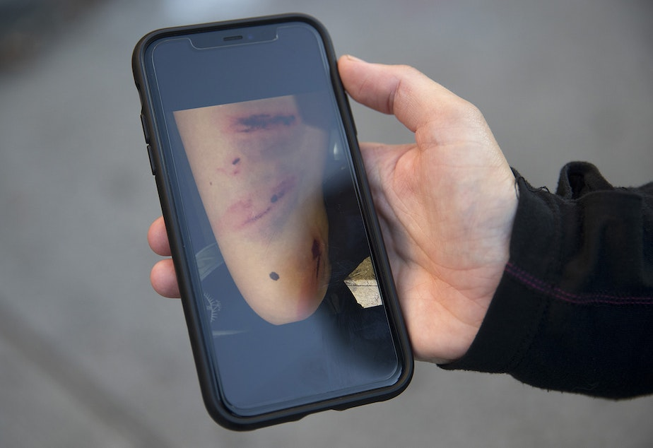 caption: A person protesting for racial justice and against police brutality displays a picture of injuries that were sustained after they were hit directly in the leg with a flash bang grenade thrown by Seattle Police officers at the intersection of 11th Avenue and East Pine Street following the Youth Liberation Front march in solidarity with Portland, on Saturday, July 25, 2020, in Seattle.