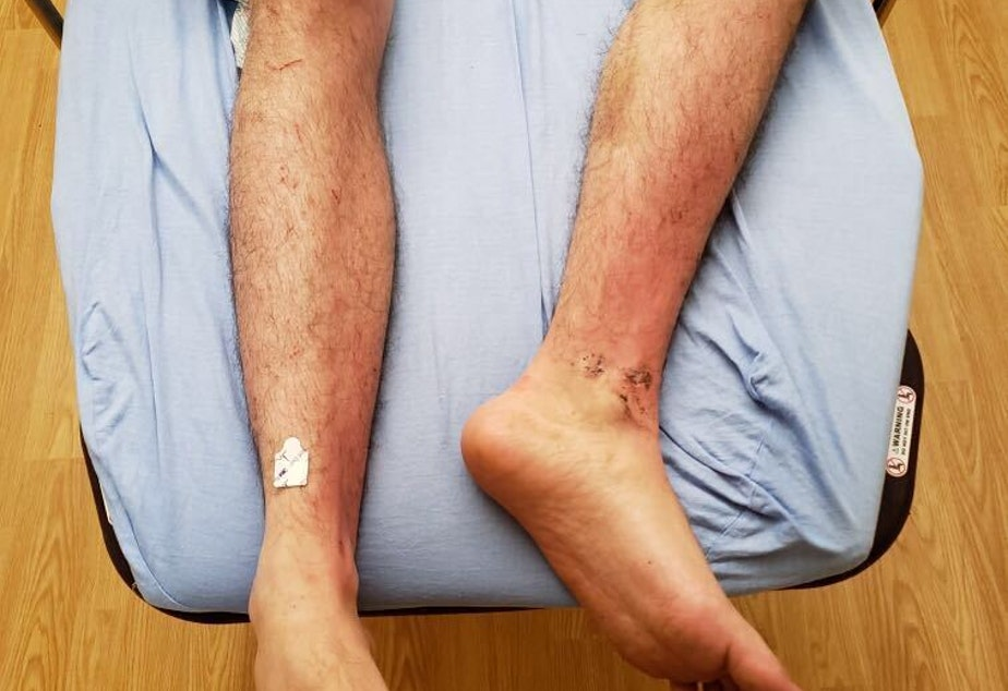 caption: Andrew Devers' legs after he went missing for nine days in the woods near North Bend, Washington, about 40 minutes away from where he lives. Devers, 25, said that his wounds stopped healing as well the longer he went without enough food.