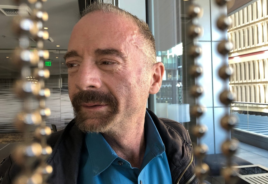 "Timothy Ray Brown poses for a photograph, Monday, March 4, 2019, in Seattle. Brown, also known as the ""Berlin patient,"" was the first person to be cured of HIV infection, more than a decade ago. Now researchers are reporting a second patient has lived 18 months after stopping HIV treatment without sign of the virus following a stem-cell transplant. But such transplants are dangerous, cannot be used widely and have failed in other patients."