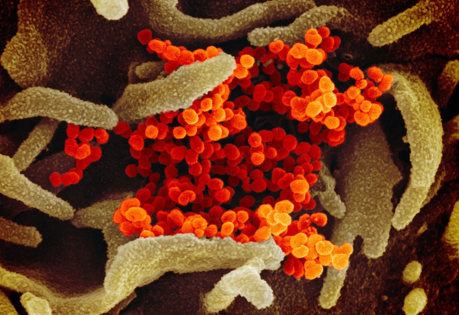 caption: In this image from a scanning electron microscope, the new coronavirus is in orange.